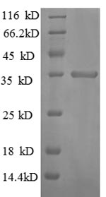 SDS-PAGE separation of QP8655 followed by commassie total protein stain results in a primary band consistent with reported data for CXCL10 / Crg-2. These data demonstrate Greater than 90% as determined by SDS-PAGE.