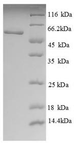 SDS-PAGE separation of QP8712 followed by commassie total protein stain results in a primary band consistent with reported data for LCAT. These data demonstrate Greater than 90% as determined by SDS-PAGE.