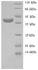 SDS-PAGE separation of QP8716 followed by commassie total protein stain results in a primary band consistent with reported data for Collagen alpha-1(IV) chain. These data demonstrate Greater than 90% as determined by SDS-PAGE.