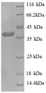 SDS-PAGE separation of QP8717 followed by commassie total protein stain results in a primary band consistent with reported data for Tenascin C. These data demonstrate Greater than 90% as determined by SDS-PAGE.