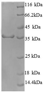 SDS-PAGE separation of QP8723 followed by commassie total protein stain results in a primary band consistent with reported data for Cyclin-dependent kinase 4. These data demonstrate Greater than 90% as determined by SDS-PAGE.