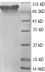 SDS-PAGE separation of QP8726 followed by commassie total protein stain results in a primary band consistent with reported data for Glutamate carboxypeptidase 2. These data demonstrate Greater than 90% as determined by SDS-PAGE.