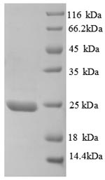 SDS-PAGE separation of QP8728 followed by commassie total protein stain results in a primary band consistent with reported data for TIMP-3. These data demonstrate Greater than 80% as determined by SDS-PAGE.