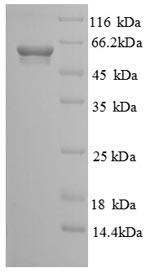 SDS-PAGE separation of QP8754 followed by commassie total protein stain results in a primary band consistent with reported data for CANT1. These data demonstrate Greater than 90% as determined by SDS-PAGE.