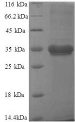 SDS-PAGE separation of QP8762 followed by commassie total protein stain results in a primary band consistent with reported data for Metalloreductase STEAP1. These data demonstrate Greater than 90% as determined by SDS-PAGE.