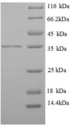 SDS-PAGE separation of QP8763 followed by commassie total protein stain results in a primary band consistent with reported data for Tropomyosin beta chain. These data demonstrate Greater than 86.7% as determined by SDS-PAGE.