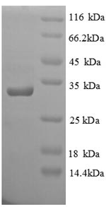 SDS-PAGE separation of QP8783 followed by commassie total protein stain results in a primary band consistent with reported data for Glutamate receptor ionotropic