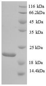 SDS-PAGE separation of QP8792 followed by commassie total protein stain results in a primary band consistent with reported data for Urokinase / PLAU. These data demonstrate Greater than 90% as determined by SDS-PAGE.