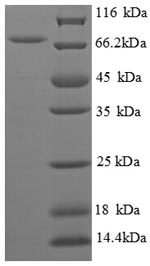 SDS-PAGE separation of QP8804 followed by commassie total protein stain results in a primary band consistent with reported data for Biosynthetic arginine decarboxylase. These data demonstrate Greater than 90% as determined by SDS-PAGE.