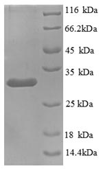 SDS-PAGE separation of QP8809 followed by commassie total protein stain results in a primary band consistent with reported data for KNG1 / BDK / kininogen-1. These data demonstrate Greater than 90% as determined by SDS-PAGE.