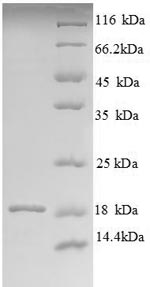 SDS-PAGE separation of QP8810 followed by commassie total protein stain results in a primary band consistent with reported data for Angiogenin-1. These data demonstrate Greater than 90% as determined by SDS-PAGE.