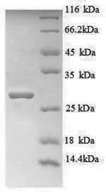 SDS-PAGE separation of QP8823 followed by commassie total protein stain results in a primary band consistent with reported data for Titin. These data demonstrate Greater than 90% as determined by SDS-PAGE.