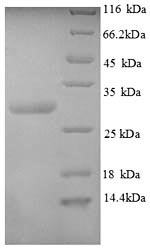SDS-PAGE separation of QP8831 followed by commassie total protein stain results in a primary band consistent with reported data for CALCA / CGRP. These data demonstrate Greater than 90% as determined by SDS-PAGE.