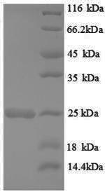 SDS-PAGE separation of QP8837 followed by commassie total protein stain results in a primary band consistent with reported data for HRAS / GTPase Hras. These data demonstrate Greater than 90% as determined by SDS-PAGE.
