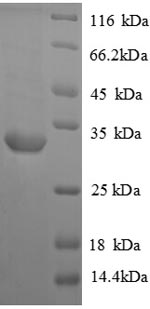 SDS-PAGE separation of QP8843 followed by commassie total protein stain results in a primary band consistent with reported data for Vasopressin V1a receptor. These data demonstrate Greater than 90% as determined by SDS-PAGE.