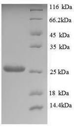 SDS-PAGE separation of QP8863 followed by commassie total protein stain results in a primary band consistent with reported data for Trehalose-phosphatase. These data demonstrate Greater than 90% as determined by SDS-PAGE.
