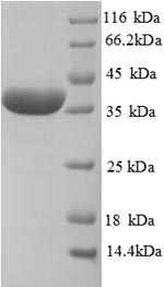SDS-PAGE separation of QP8887 followed by commassie total protein stain results in a primary band consistent with reported data for Haptoglobin. These data demonstrate Greater than 90% as determined by SDS-PAGE.
