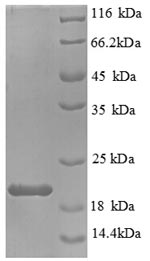 SDS-PAGE separation of QP8893 followed by commassie total protein stain results in a primary band consistent with reported data for IL-1 beta / IL1B. These data demonstrate Greater than 90% as determined by SDS-PAGE.