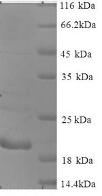 SDS-PAGE separation of QP9084 followed by commassie total protein stain results in a primary band consistent with reported data for Cancer / testis antigen 1. These data demonstrate Greater than 90% as determined by SDS-PAGE.
