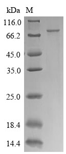 SDS-PAGE separation of QP9088 followed by commassie total protein stain results in a primary band consistent with reported data for CTP synthase 1. These data demonstrate Greater than 90% as determined by SDS-PAGE.