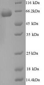 SDS-PAGE separation of QP9161 followed by commassie total protein stain results in a primary band consistent with reported data for Glucose-6-phosphate isomerase. These data demonstrate Greater than 90% as determined by SDS-PAGE.