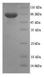 SDS-PAGE separation of QP9356 followed by commassie total protein stain results in a primary band consistent with reported data for CD45 / PTPRC. These data demonstrate Greater than 90% as determined by SDS-PAGE.