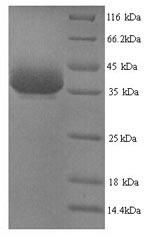 SDS-PAGE separation of QP9471 followed by commassie total protein stain results in a primary band consistent with reported data for Nuclease-sensitive element-binding protein 1. These data demonstrate Greater than 90% as determined by SDS-PAGE.