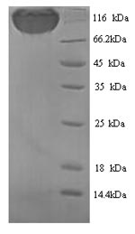 SDS-PAGE separation of QP9939 followed by commassie total protein stain results in a primary band consistent with reported data for Podocalyxin. These data demonstrate Greater than 90% as determined by SDS-PAGE.