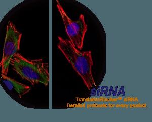 HomePage siRNA