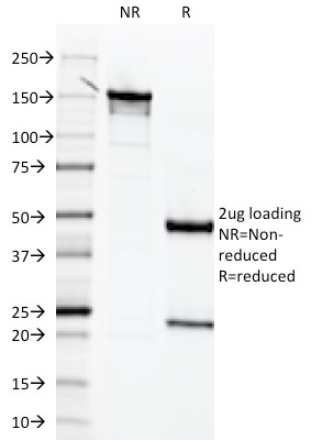 SDS-PAGE Analysis Purified Mesothelin Mouse Monoclonal Antibody (MSLN/2131).Confirmation of Integrity and Purity of the Antibody.