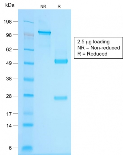 SDS-PAGE Analysis Purified Chromogranin A Rabbit Recombinant Monoclonal Antibody (CHGA/1815R).