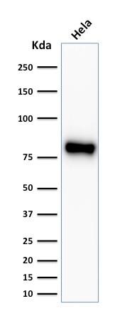 Western blot analysis of Hela cell lysate using Beta-Catenin Recombinant Rabbit Monoclonal Antibody (CTNNB1/2030R).