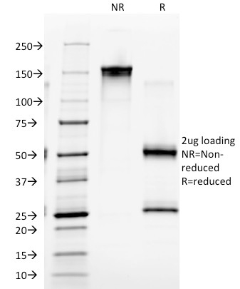 SDS-PAGE Analysis Purified EGFR Mouse Monoclonal Antibody (GFR/2341).Confirmation of Integrity and Purity of Antibody.