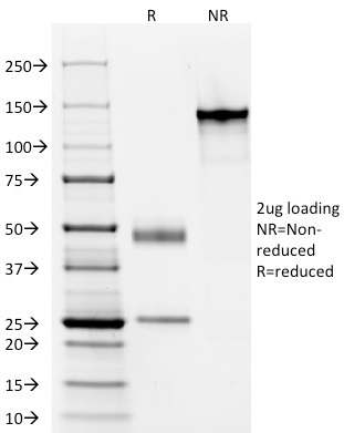 SDS-PAGE Analysis Purified Elastin Mouse Monoclonal Antibody (ELN/1981) Confirmation of Integrity and Purity of Antibody.