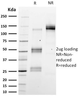 SDS-PAGE Analysis Purified Emerin Mouse Monoclonal Antibody (EMD/2167).Confirmation of Integrity and Purity of Antibody.