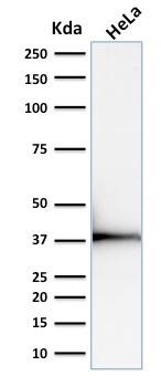 Western Blot Analysis of human HeLa Cell lysate using Emerin Mouse Monoclonal Antibody (EMD/2168).