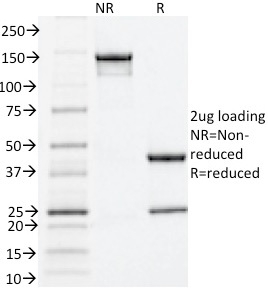 SDS-PAGE Analysis Purified Estrogen Receptor alpha Mouse Monoclonal Antibody (ESR1/1935).Confirmation of Integrity and Purity of Antibody.