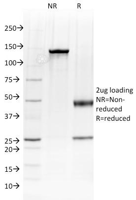SDS-PAGE Analysis Purified Albumin Mouse Monoclonal Antibody (ALB/2144).Confirmation of Integrity and Purity of Antibody.