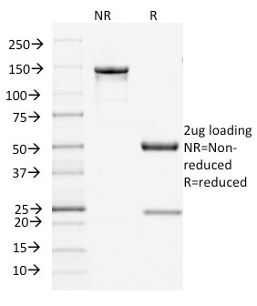 SDS-PAGE Analysis Purified Filaggrin Mouse Monoclonal Antibody (FLG/1945).Confirmation of Integrity and Purity of Antibody.