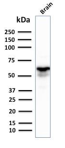 Western Blot Analysis of human Brain tissue lysate using GAD1 (GAD67) Mouse Monoclonal Antibody (GAD1/2391).