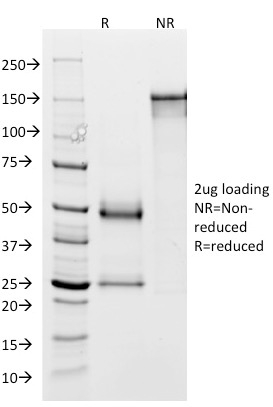 SDS-PAGE Analysis Purified GP2 Mouse Monoclonal Antibody (GP2/1803). Confirmation of Integrity and Purity of Antibody.