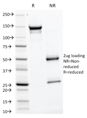 SDS–PAGE Analysis  Purified GP2 Mouse Monoclonal Antibody (GP2/1805). Confirmation of Purity and Integrity.