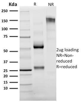 SDS-PAGE Analysis Purified Granzyme B Mouse Monoclonal Antibody (GZMB/2403).Confirmation of Integrity and Purity of Antibody.