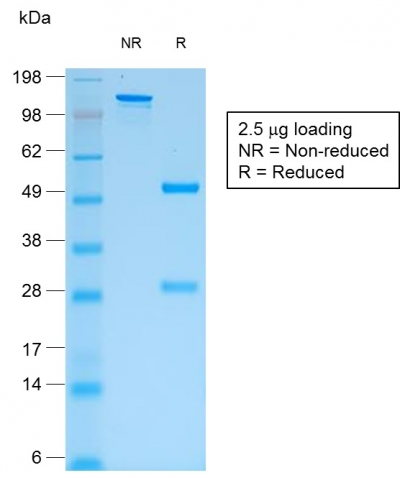 SDS-PAGE Analysis Purified IgG Mouse Recombinant Monoclonal Antibody (rIG266).Confirmation of Purity and Integrity of Antibody.