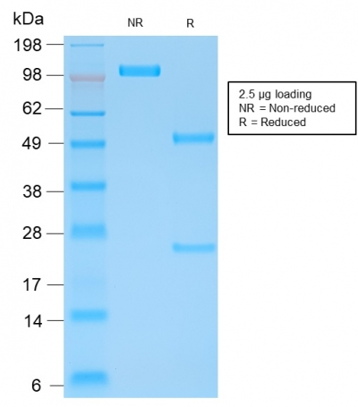 SDS-PAGE Analysis Purified Kappa Light Chain Mouse Recombinant Monoclonal Ab (rL1C1).Confirmation of Purity and Integrity of Antibody.