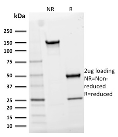 SDS-PAGE Analysis Purified CD25Mouse Monoclonal Antibody (IL2RA/2395).Confirmation of Integrity and Purity of Antibody