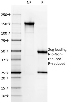 SDS-PAGE Analysis Purified Cytokeratin 6A (KRT6A) Mouse Monoclonal Antibody (KRT6A/2368). Confirmation of Integrity and Purity of Antibody
