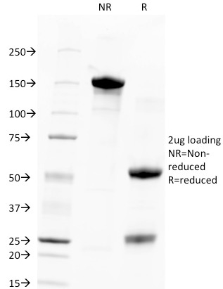 SDS-PAGE Analysis Purified TACSTD2 / TROP2 Mouse Monoclonal Antibody (TACSTD2/2151).Confirmation of Integrity and Purity of Antibody.