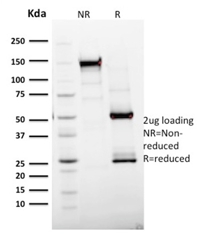 SDS-PAGE Analysis Purified Ki67 Mouse Monoclonal Antibody (MKI67/2465).Confirmation of Integrity and Purity of Antibody.