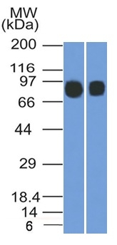 Western Blot (1) Raji and (2) Ramos Cell lysates using CD10 Mouse Monoclonal Antibody (MME/1892).
